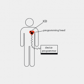 Pacemakers Can Be Hacked to Harm or Kill Patients Image