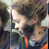 Headphone Batteries Explode on Flight, Burn Woman's Face and Hands Image