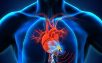 Over 8,600 Security Flaws Found in Pacemaker Systems Image
