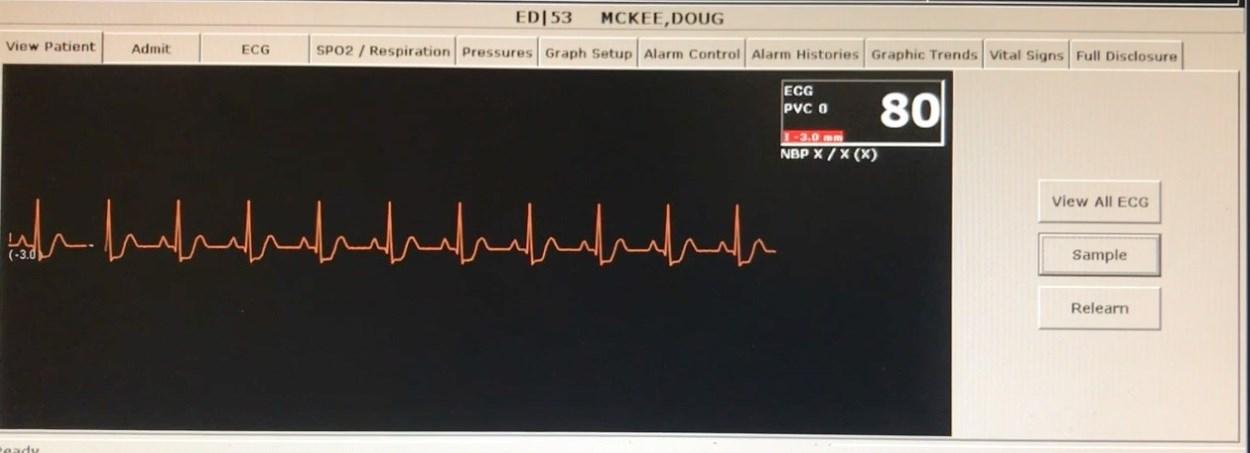 Hackers Can Falsify Patient Vitals